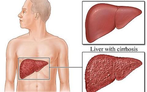 Ciroza hepatica – recomandări și regim alimentar
