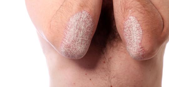 Regim alimentar psoriazis vulgar